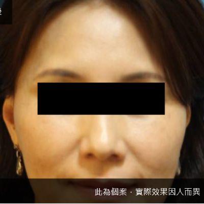 【非手術】臉部補脂太陽穴植入