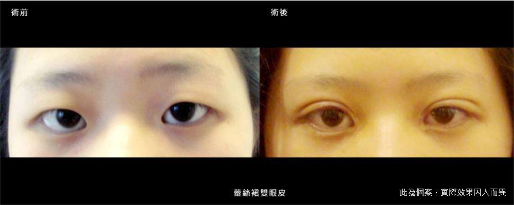 【手術】蕾絲裙雙眼皮