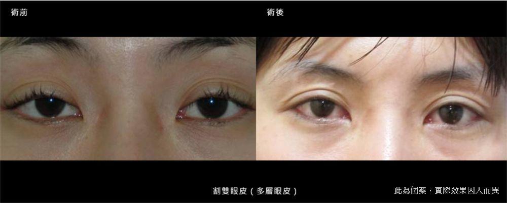 【手術】眼袋