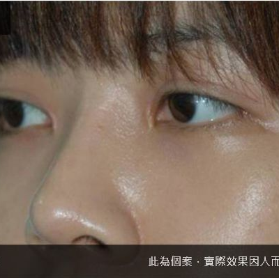 【手術】韓式精緻鼻雕