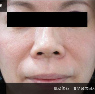 【問題肌膚】黑斑雞尾酒式光療護膚