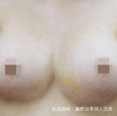 【隆乳】矽膠隆乳