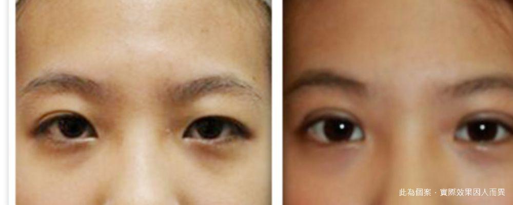 【手術】釘書針式雙眼皮