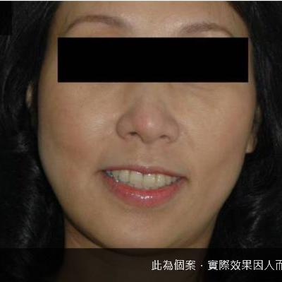 【非手術】臉部補脂脂肪填入