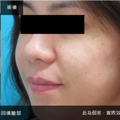【非手術】臉部補脂