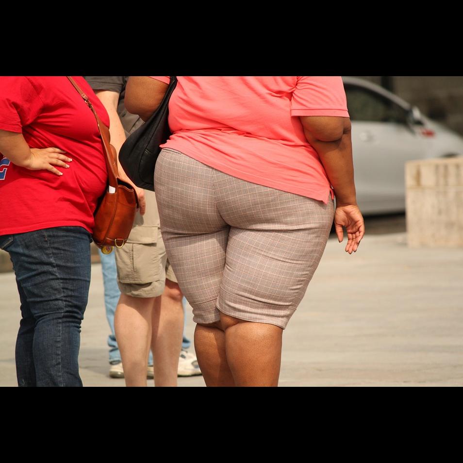 想減肥就把胃縮小?縮胃手術的優缺點,醫師一次分析告訴你